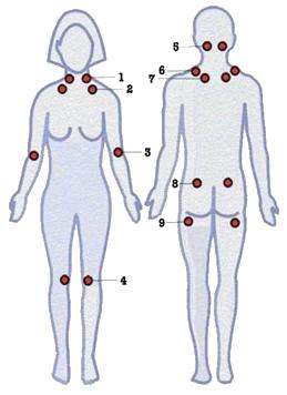 Fibromyalgie Tenderpoints